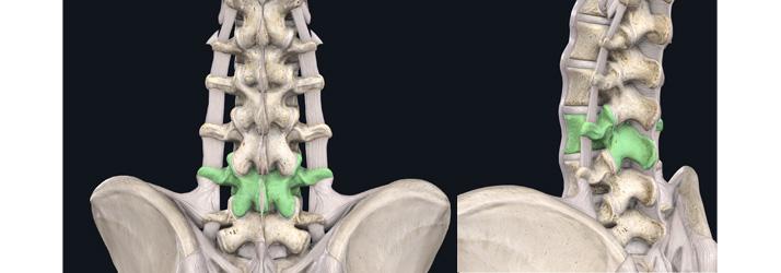 Chiropractic Adjustment at Metroplex Wellness in Southlake TX